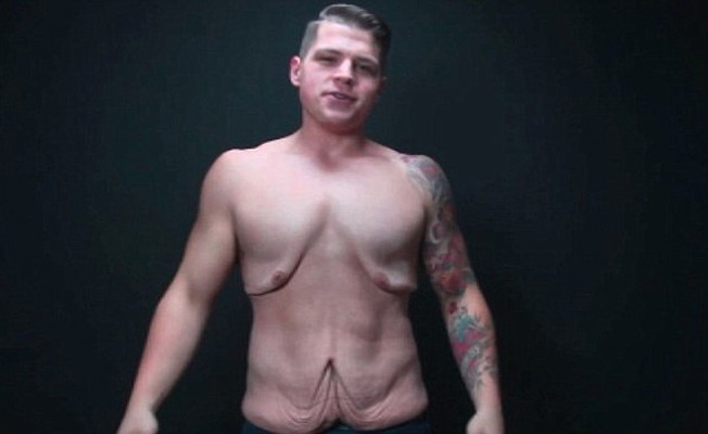 loose-skin-after-weight-loss-652x400-1-1465991756